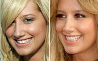 Pretty Celebrities With Big Noses 9 Cool Hd Wallpaper